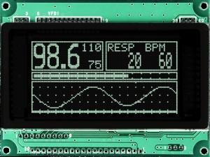 GU128X64E-U100-front_pulse-oximeter_800x600-300x225